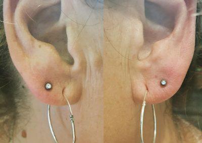 piercing orpington 5